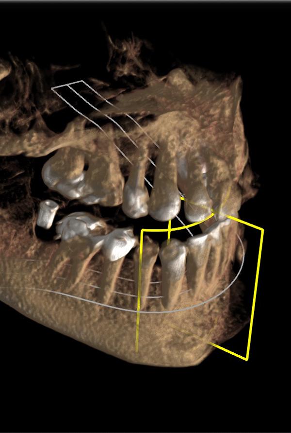 Zahnärzte in der Filzfabrik -3D-Diagnostik-DVT-top