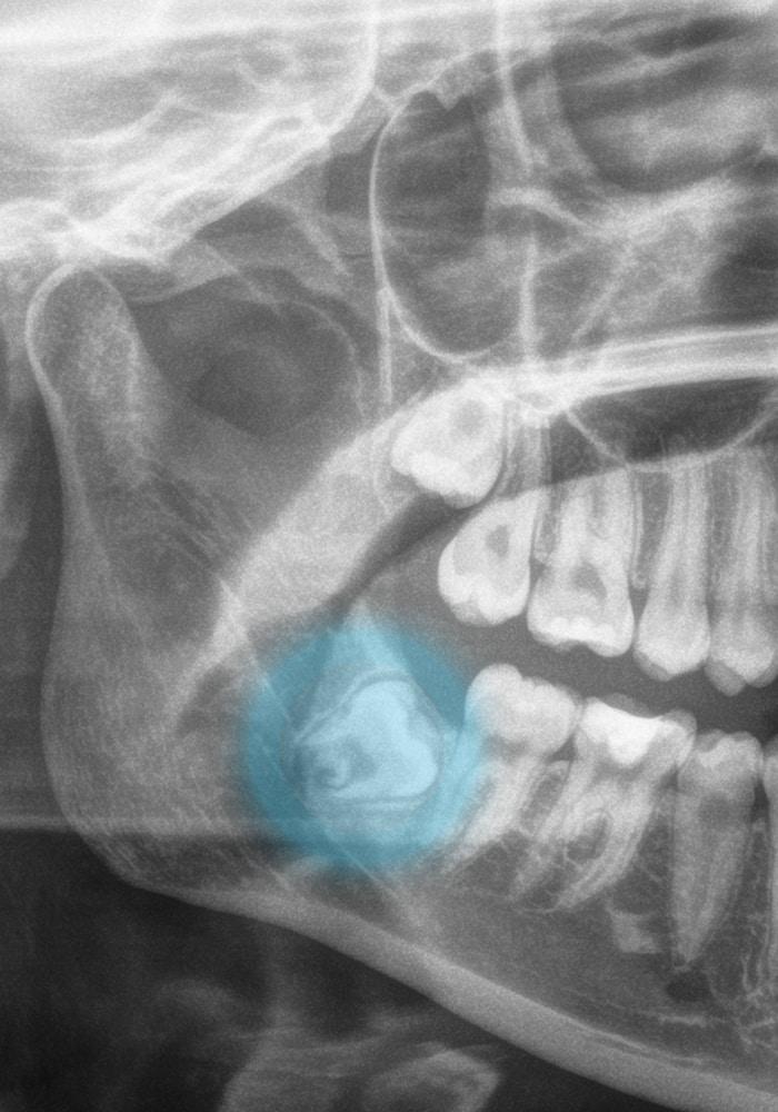 Zahnärzte in der Filzfabrik-Speyer Oralchirurgie Weisheitszahn